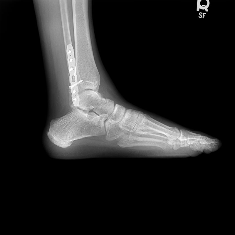 Orthopedic Package Unprocessed