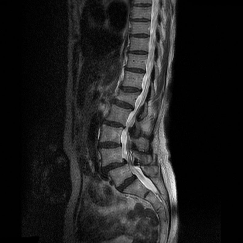 MRI2plus Unprocessed